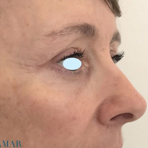Upper blepharoplasty and lower blepharoplasty tranconjunctival plus fat transfer around orbital area - testimonial