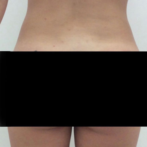 Liposuction to outer thighs plus fat transfer to buttocks