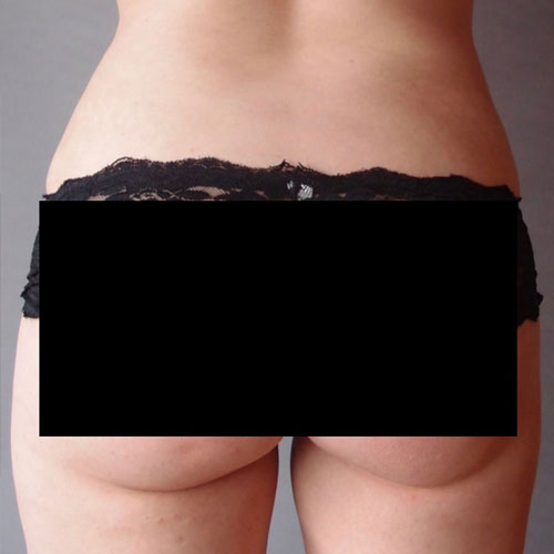 Liposuction to flanks and outer and inner thighs
