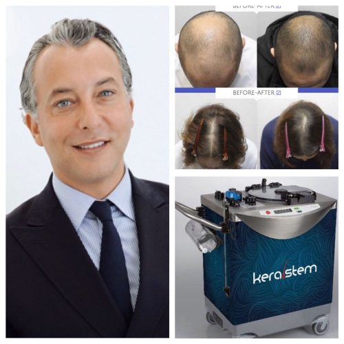 Mr Olivier Amar is a leading practitioner in stem cell hair loss treatment and fat transfer and has been appointed Kerastem UK ambassador for south of England.