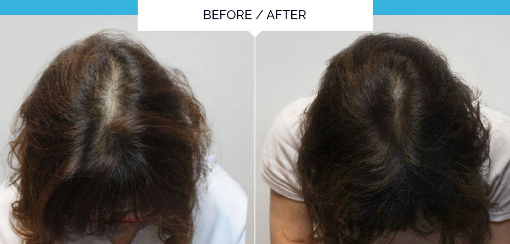 Before and after photo showing the results of the hair loss treatment by Mr Olivier Amar