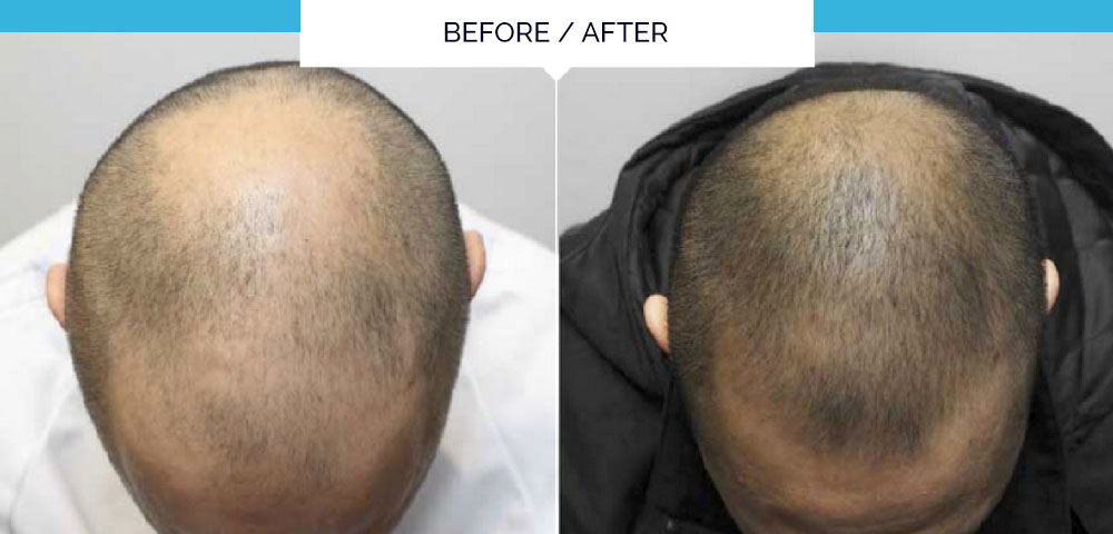 Discover The Revolutionary One Off Treatment For Thinning Hair And Alopecia By Olivier Amar Cosmetic Finesse In The Heart Of London