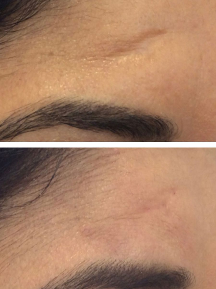 A new and unique method to treating scars